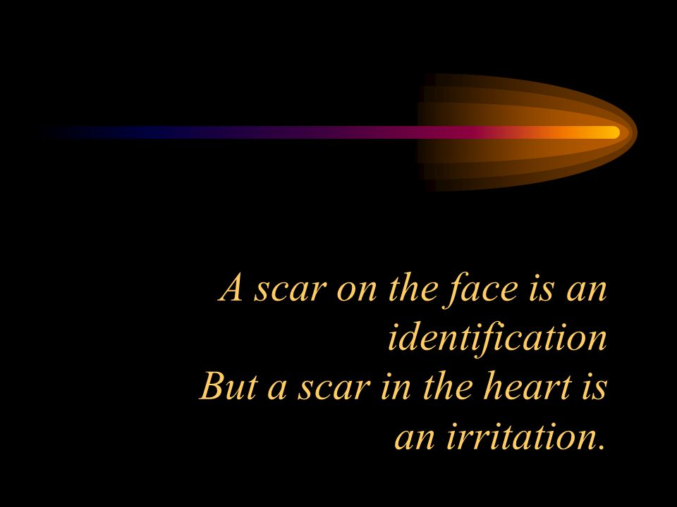 A scar on the face is an identification But a scar in the heart is an irritation.