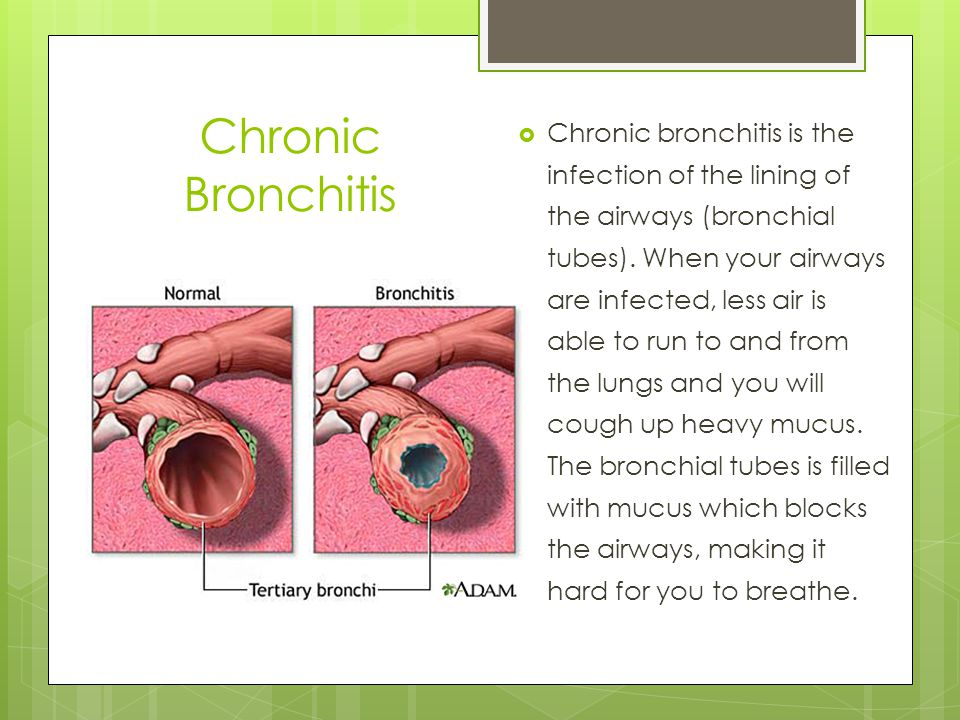  Chronic bronchitis is the infection of the lining of the airways (bronchial tubes).