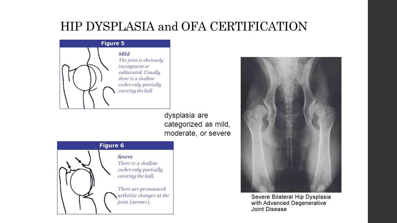 Adversity i am not afraid of storms for i am learning how to 20 hip dysplasia and ofa certification dysplasia are categorized as mild moderate or severe 1betcityfo Image collections