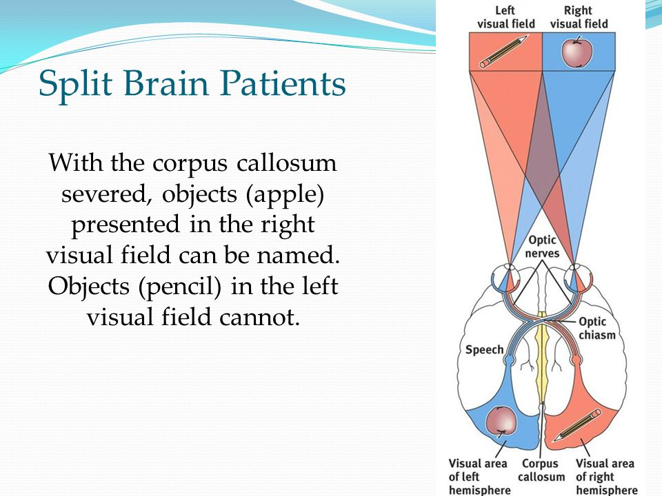 Split Brain Patients With the corpus callosum severed, objects (apple) presented in the right visual field can be named.