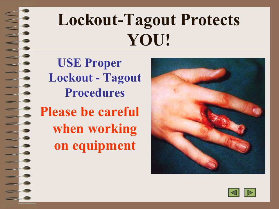 Lockout-Tagout Protects YOU.