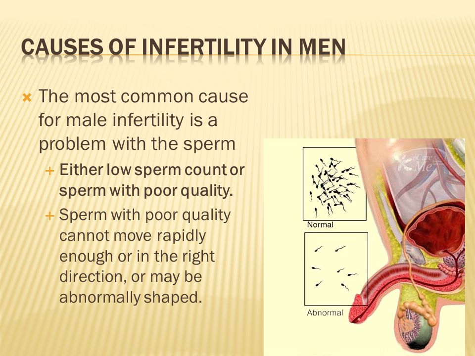  The most common cause for male infertility is a problem with the sperm  Either low sperm count or sperm with poor quality.