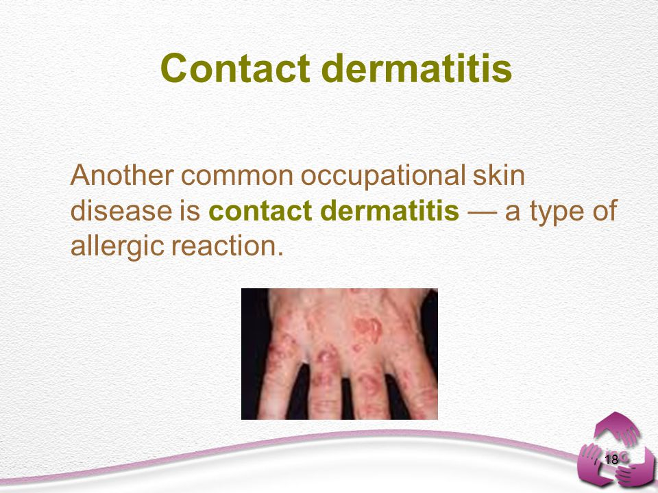 18 Contact dermatitis Another common occupational skin disease is contact dermatitis — a type of allergic reaction.
