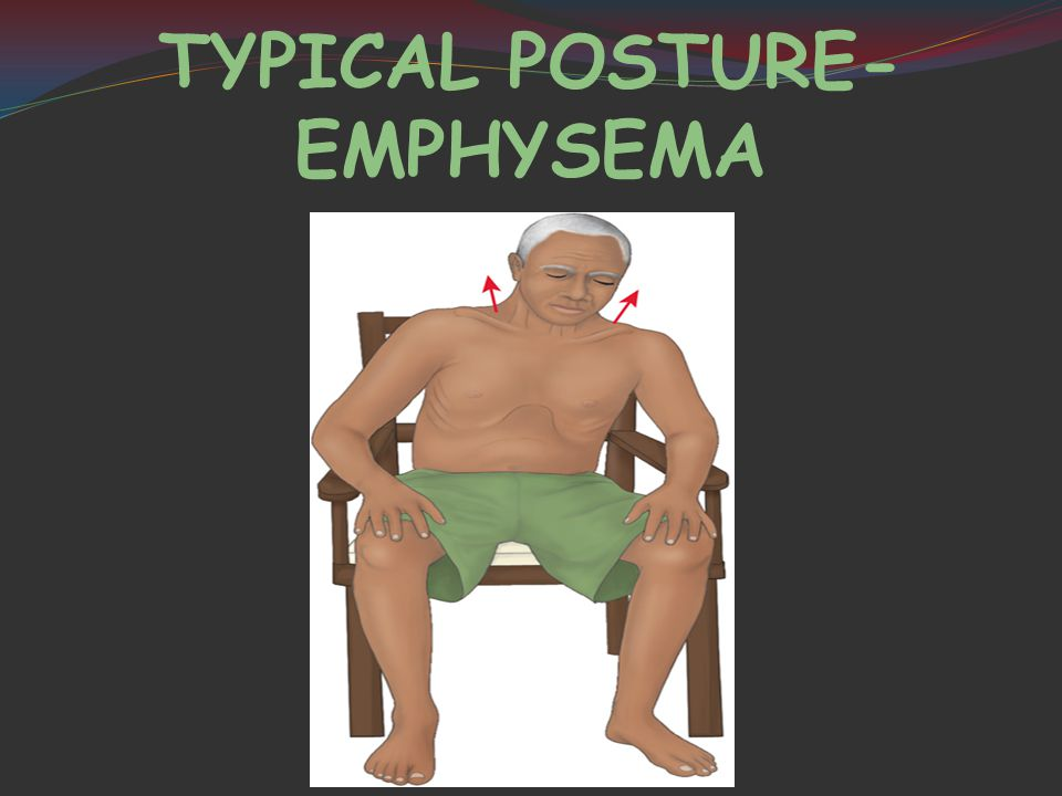 TYPICAL POSTURE- EMPHYSEMA