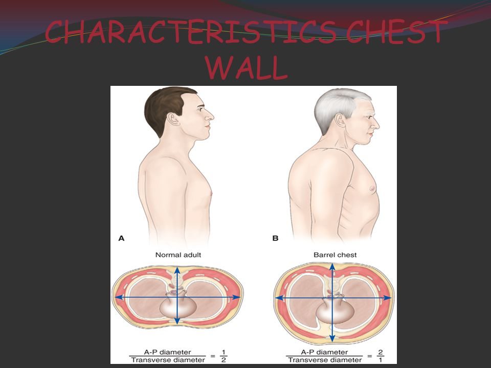 CHARACTERISTICS CHEST WALL