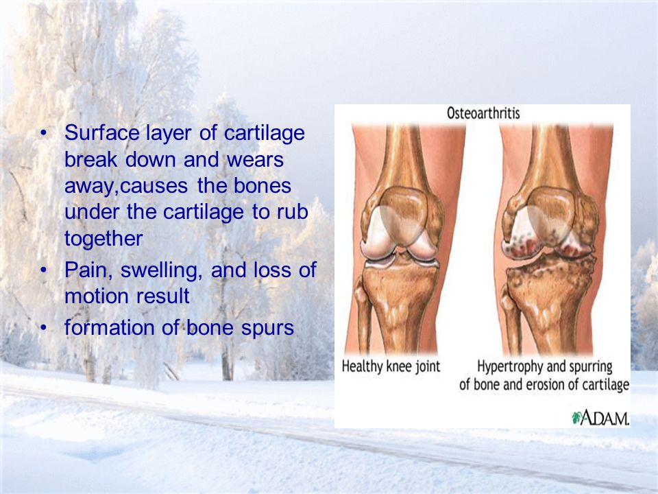 Surface layer of cartilage break down and wears away,causes the bones under the cartilage to rub together Pain, swelling, and loss of motion result formation of bone spurs