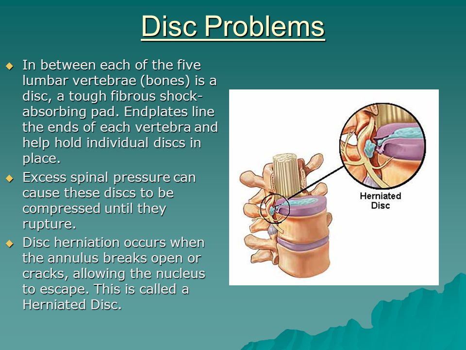 Disc Problems  In between each of the five lumbar vertebrae (bones) is a disc, a tough fibrous shock- absorbing pad.