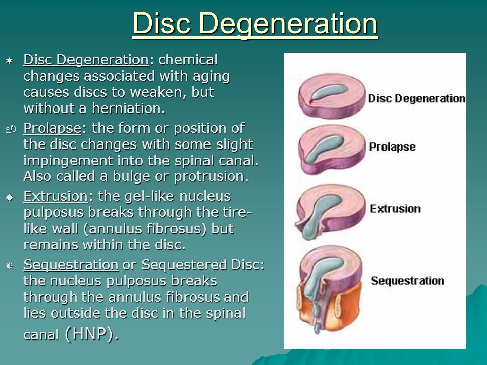 Disc Degeneration  Disc Degeneration: chemical changes associated with aging causes discs to weaken, but without a herniation.