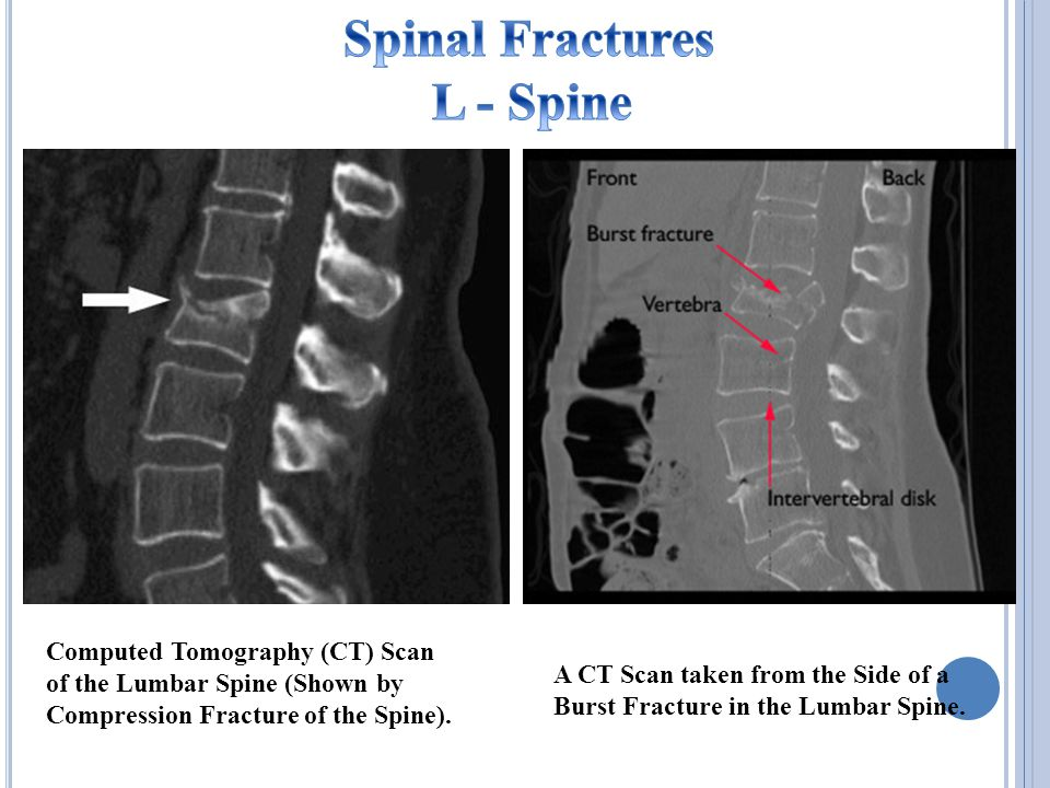 Computed Tomography (CT) Scan of the Lumbar Spine (Shown by Compression Fracture of the Spine).