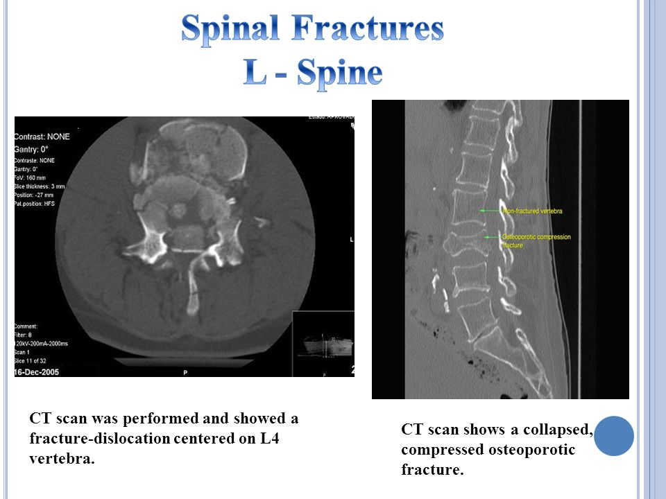 CT scan was performed and showed a fracture-dislocation centered on L4 vertebra.