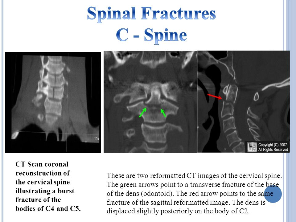CT Scan coronal reconstruction of the cervical spine illustrating a burst fracture of the bodies of C4 and C5.