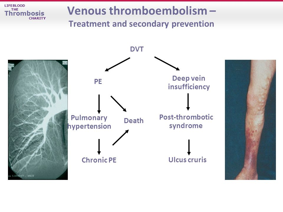 LIFEBLOOD THE Thrombosis CHARITY Venous thromboembolism – Treatment and secondary prevention Ulcus cruris Chronic PE PE DVT Post-thrombotic syndrome Death Deep vein insufficiency Pulmonary hypertension