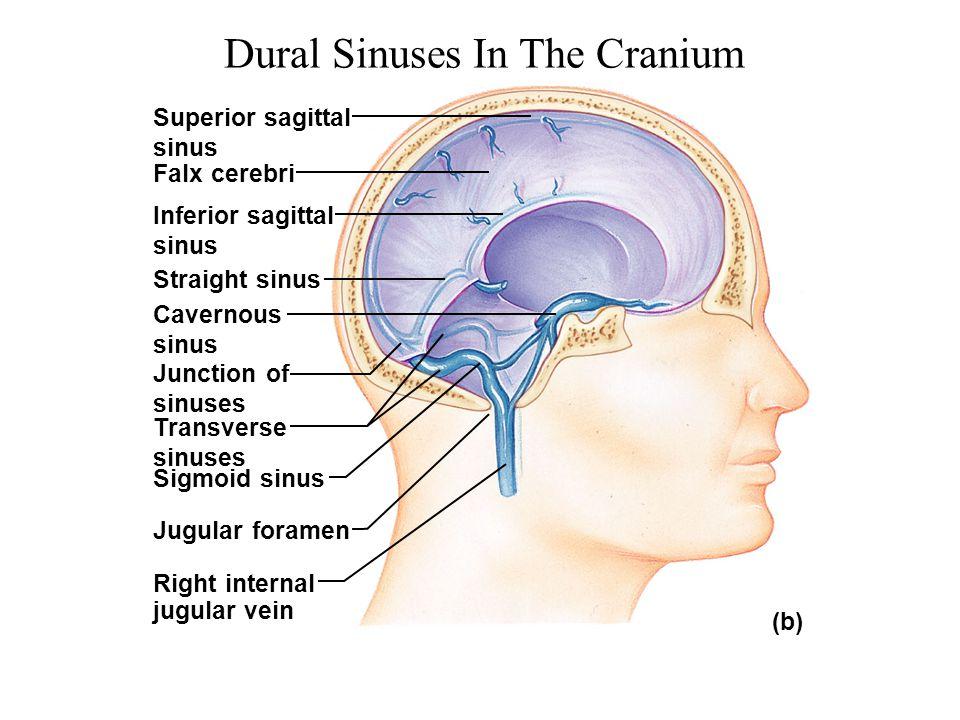 Dural Sinuses In The Cranium Superior sagittal sinus Falx cerebri Inferior sagittal sinus Straight sinus Cavernous sinus Junction of sinuses Transvers