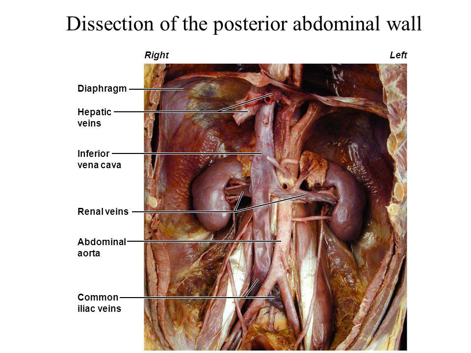 Dissection of the posterior abdominal wall Diaphragm RightLeft Inferior vena cava Hepatic veins Renal veins Common iliac veins Abdominal aorta