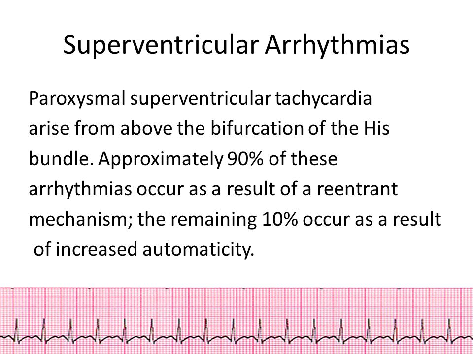 Superventricular Arrhythmias Paroxysmal superventricular tachycardia arise from above the bifurcation of the His bundle.