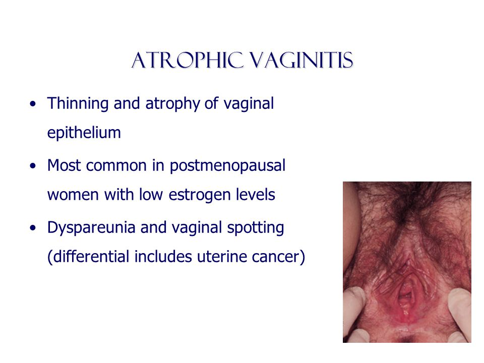 Atrophic vaginitis Thinning and atrophy of vaginal epithelium Most common in postmenopausal women with low estrogen levels Dyspareunia and vaginal spo