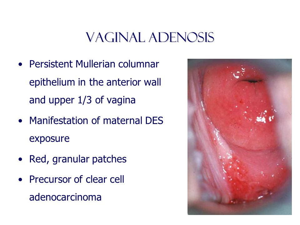Vaginal Adenosis Persistent Mullerian columnar epithelium in the anterior wall and upper 1/3 of vagina Manifestation of maternal DES exposure Red, gra