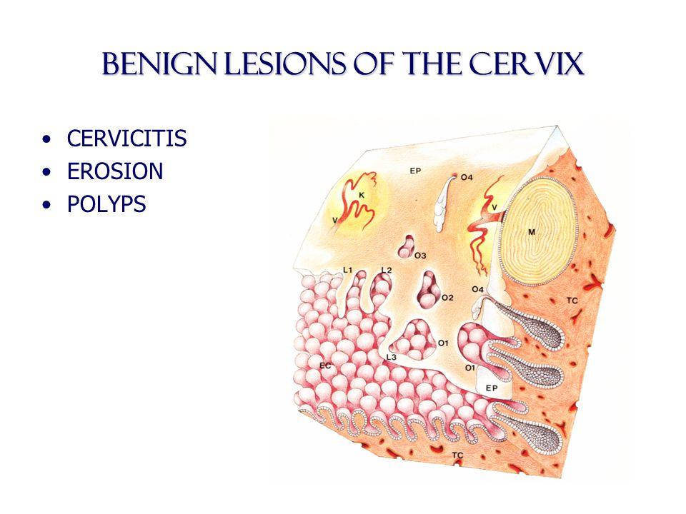 BENIGN LESIONS OF THE cervix CERVICITIS EROSION POLYPS