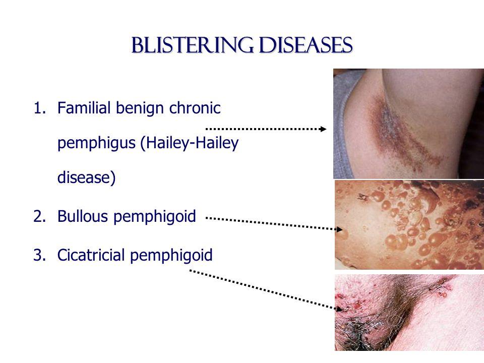 Blistering diseases 1.Familial benign chronic pemphigus (Hailey-Hailey disease) 2.Bullous pemphigoid 3.Cicatricial pemphigoid