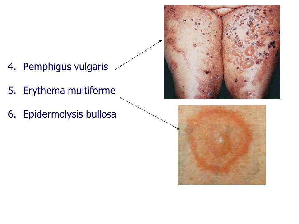 4.Pemphigus vulgaris 5.Erythema multiforme 6.Epidermolysis bullosa