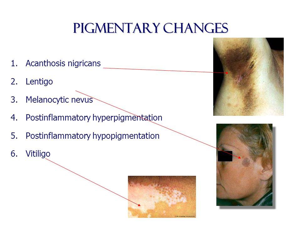 Pigmentary changes 1.Acanthosis nigricans 2.Lentigo 3.Melanocytic nevus 4.Postinflammatory hyperpigmentation 5.Postinflammatory hypopigmentation 6.Vit
