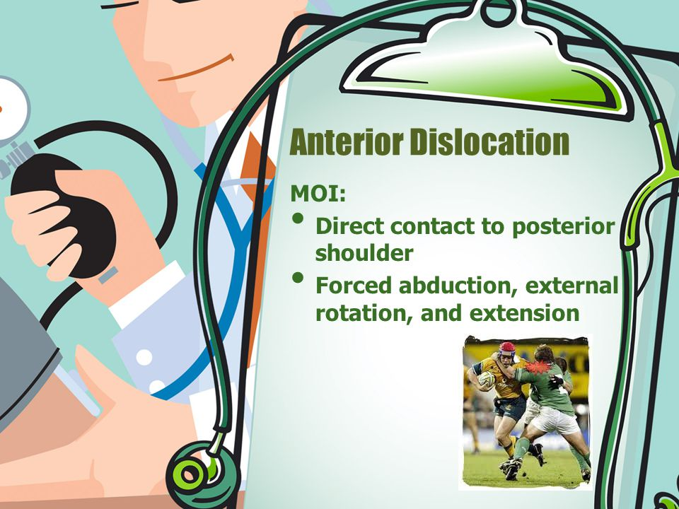 Anterior Dislocation MOI: Direct contact to posterior shoulder Forced abduction, external rotation, and extension