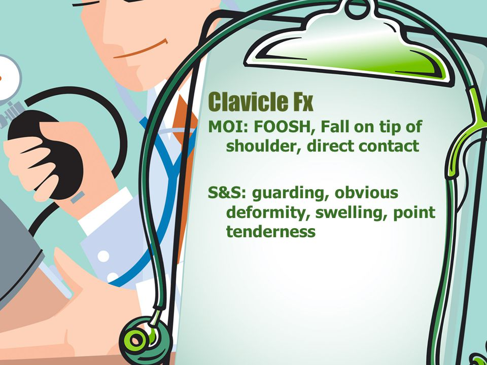 Clavicle Fx MOI: FOOSH, Fall on tip of shoulder, direct contact S&S: guarding, obvious deformity, swelling, point tenderness
