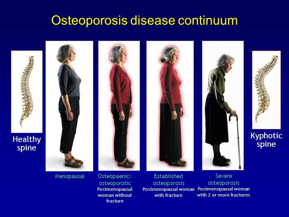 Osteoporosis disease continuum Severe osteoporosis Postmenopausal woman with 2 or more fractures Osteopaenic/ osteoporotic Postmenopausal woman without fracture Healthy spine Kyphotic spine Menopausal Established osteoporosis Postmenopausal woman with fracture