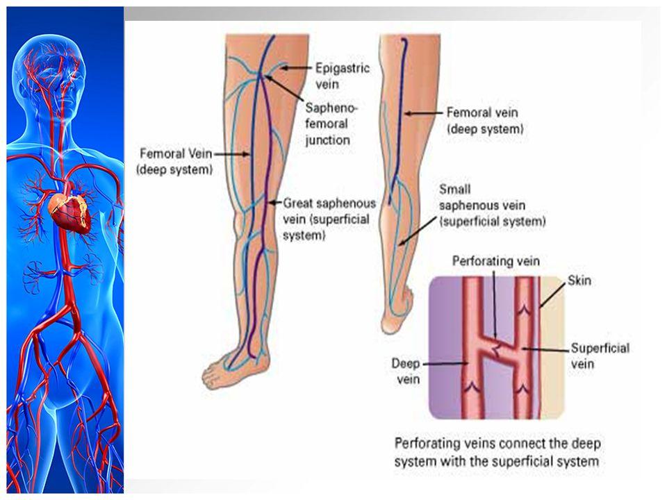 krampfadern an den beinen symptome bauch ch.jpg