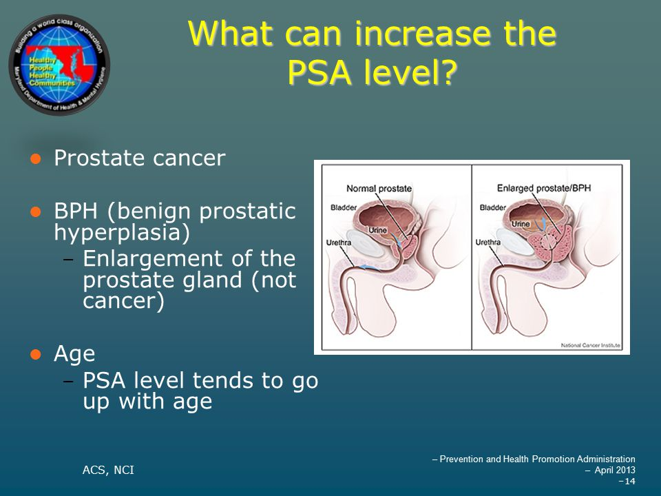 – Prevention and Health Promotion Administration – April 2013 –14 What can increase the PSA level.