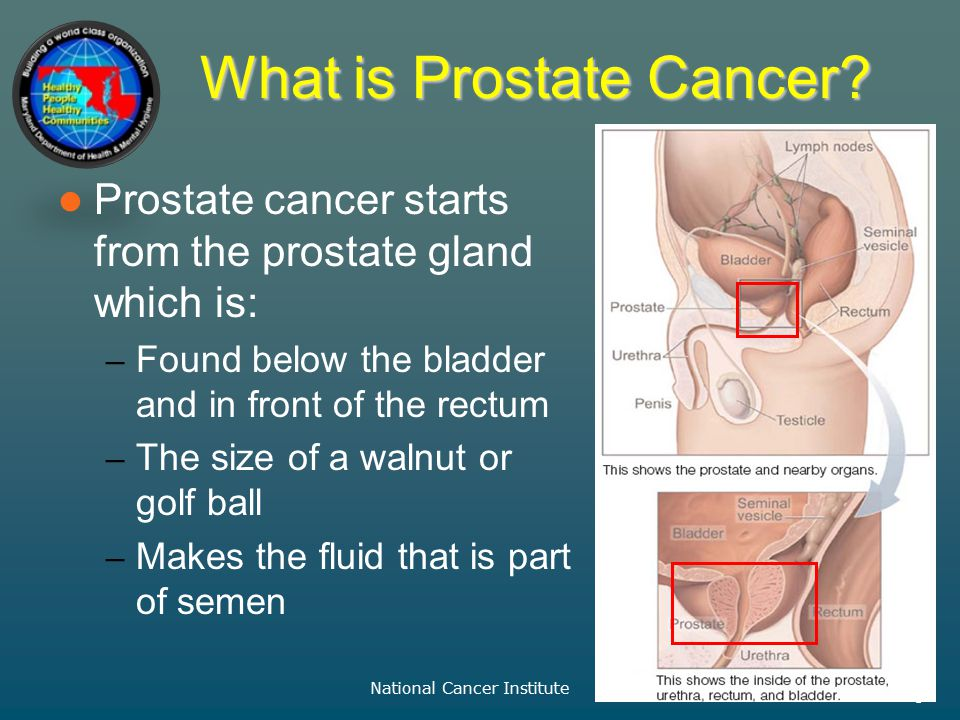 – Prevention and Health Promotion Administration – April 2013 –3 What is Prostate Cancer.
