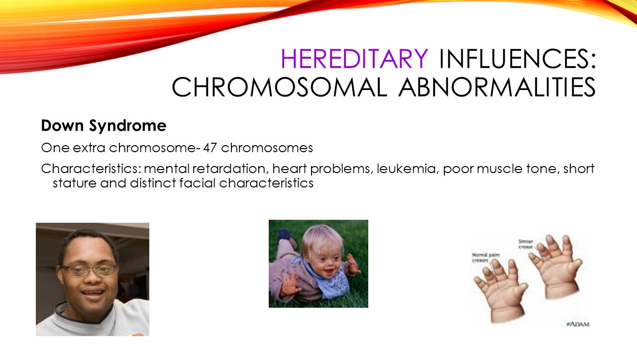 the characteristics of down syndrome a chromosomal abnormality