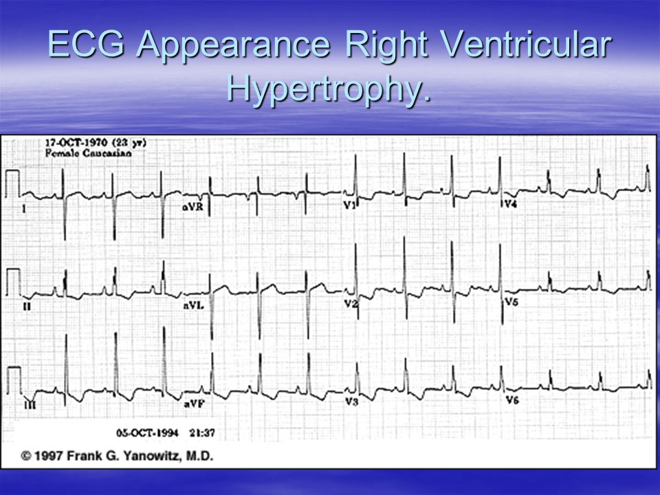 ECG Appearance Right Ventricular Hypertrophy.