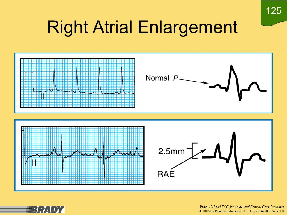Chapter 12 Objectives Identify, by criteria, evidence of right and left atrial enlargement Identify evidence of right and left ventricular hypertrophy and strain Describe the clinical implications of atrial and ventricular enlargement 124