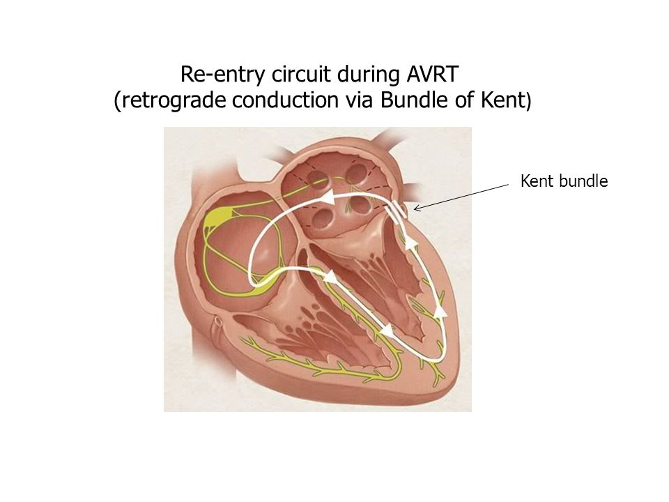 Re-entry circuit during AVRT (retrograde conduction via Bundle of Kent ) Kent bundle