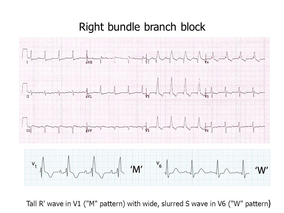 Right bundle branch block Tall R wave in V1 ( M pattern) with wide, slurred S wave in V6 ( W pattern )