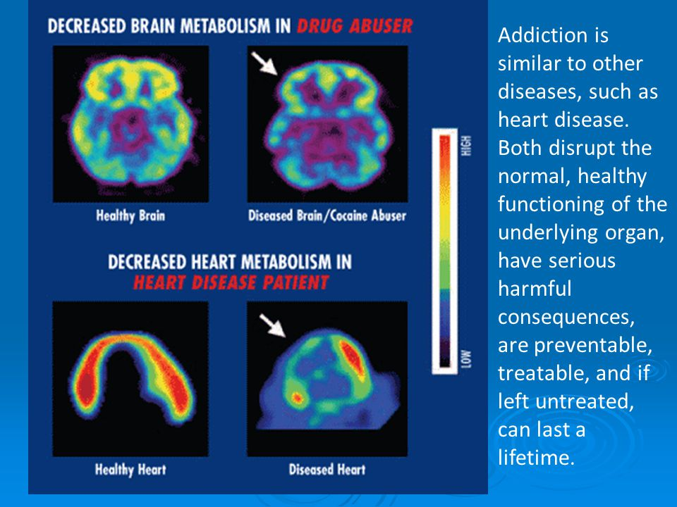 Addiction is similar to other diseases, such as heart disease.