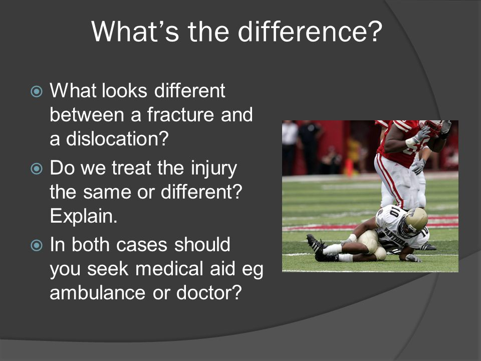 What's the difference.  What looks different between a fracture and a dislocation.