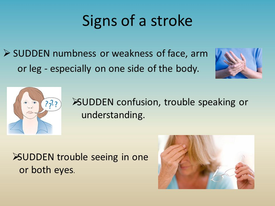 Signs of a stroke  SUDDEN numbness or weakness of face, arm or leg - especially on one side of the body.