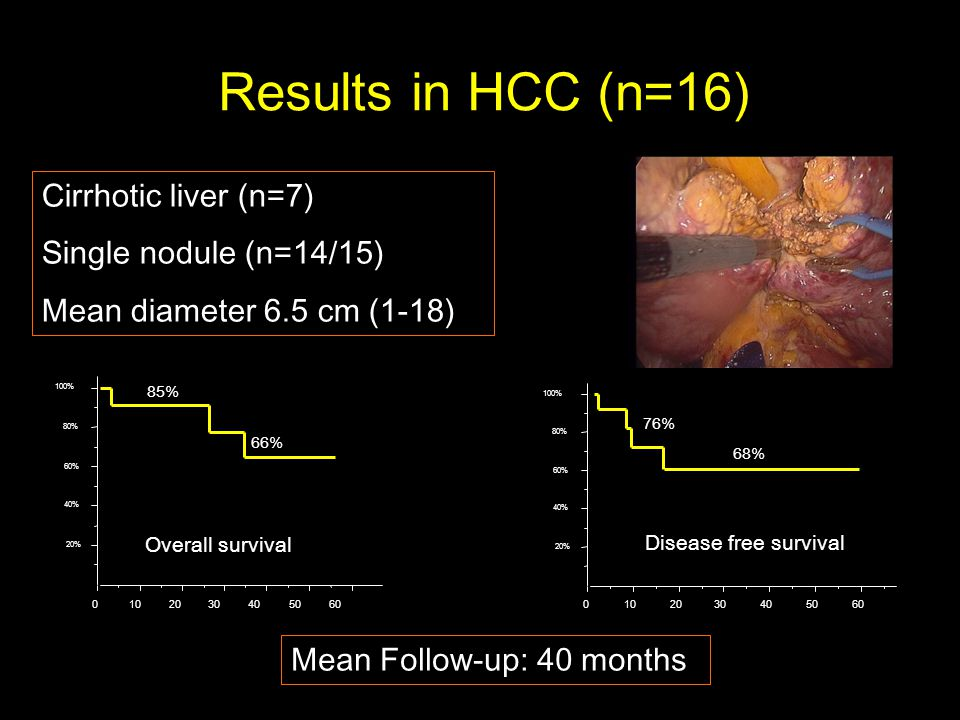 Results in HCC (n=16) Cirrhotic liver (n=7) Single nodule (n=14/15) Mean diameter 6.5 cm (1-18) % 40% 60% 80% 100% % 40% 60% 80% 100% Mean Follow-up: 40 months Overall survival Disease free survival 85% 66% 76% 68%