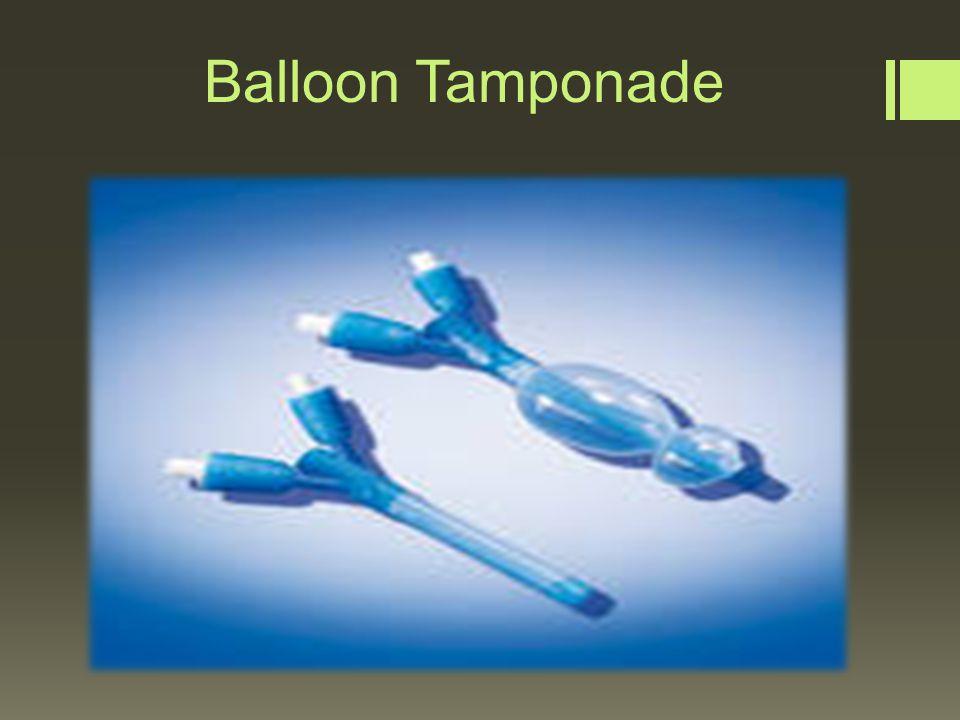 Nasal Balloon Tamponade Balloon Tamponade