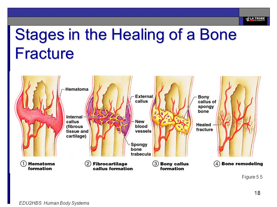 EDU2HBS Human Body Systems 18 Stages in the Healing of a Bone Fracture Figure 5.5