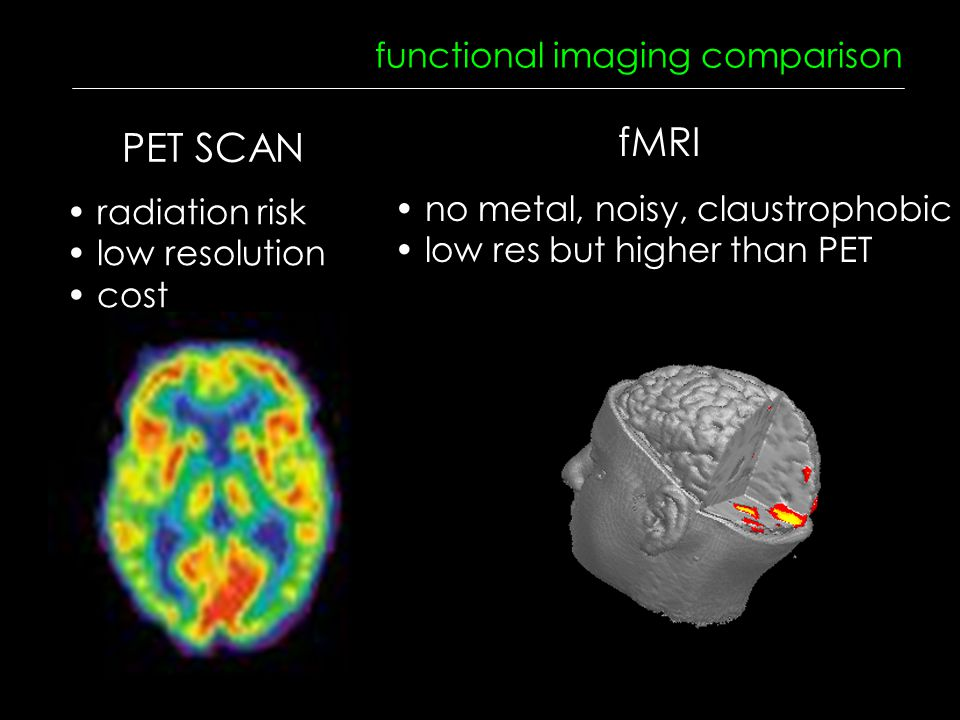 functional imaging comparison radiation risk low resolution cost no metal, noisy, claustrophobic low res but higher than PET PET SCAN fMRI