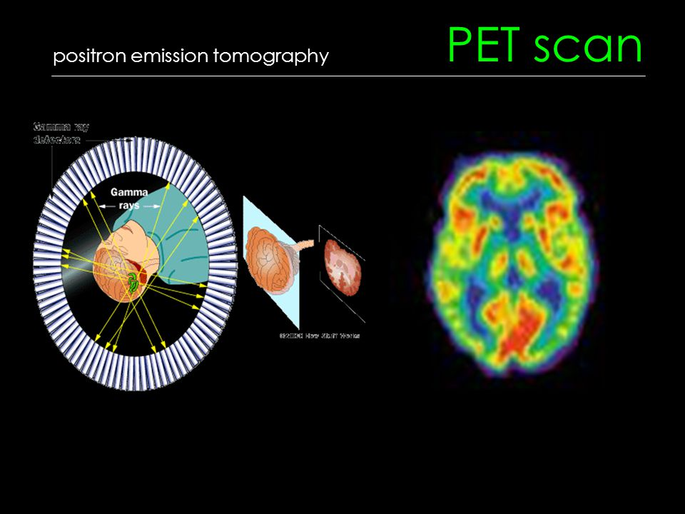 PET scan positron emission tomography
