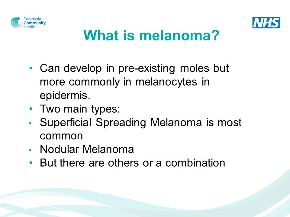 What is melanoma. Can develop in pre-existing moles but more commonly in melanocytes in epidermis.