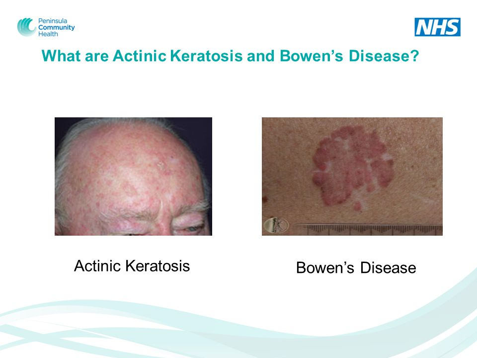 What are Actinic Keratosis and Bowen's Disease Actinic Keratosis Bowen's Disease