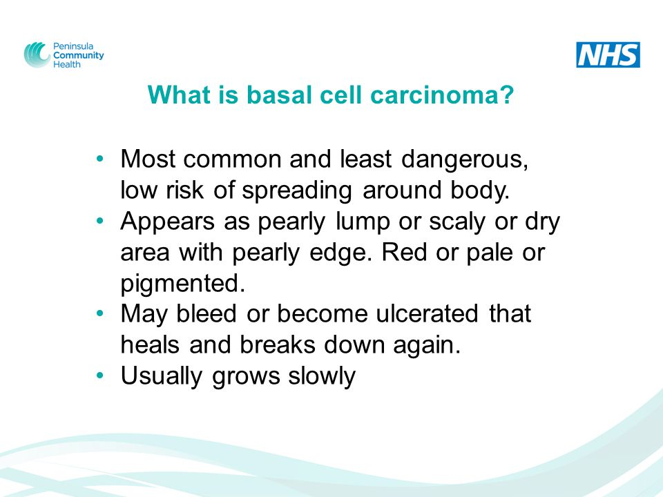 What is basal cell carcinoma. Most common and least dangerous, low risk of spreading around body.