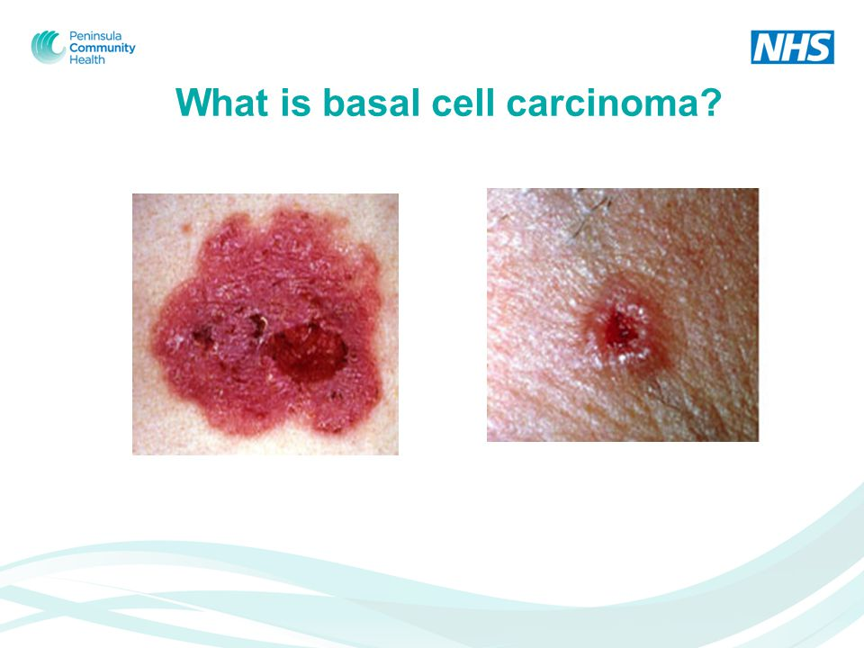 What is basal cell carcinoma