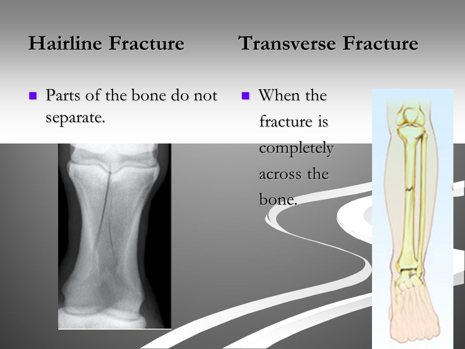 Hairline Fracture Transverse Fracture Parts of the bone do not separate.