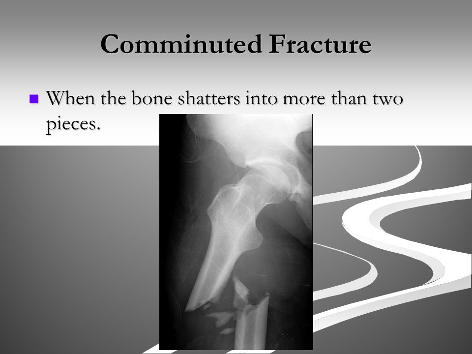 Comminuted Fracture When the bone shatters into more than two pieces.